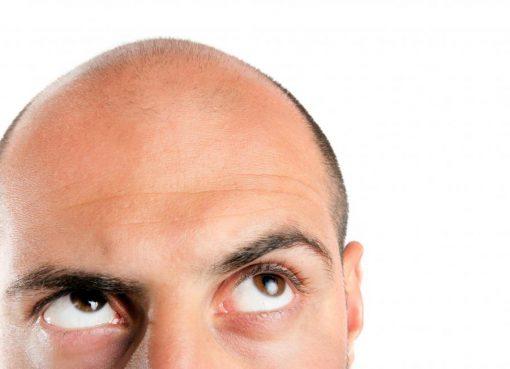 Bald Men At Higher Risk Of Severe Coronavirus Symptoms