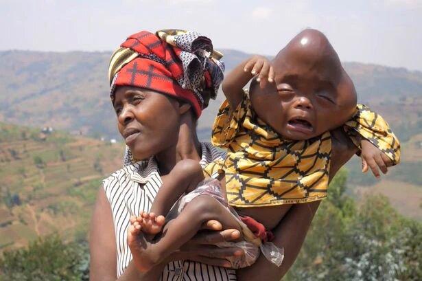 Rwandan Woman Seeks Medical Help Abroad For Her 'Devil Spawn' Baby